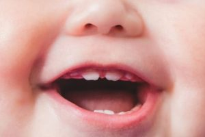 Preventing-Cavities-Keeping-Babys-Teeth-Healthy-722×406